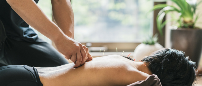 Variety of acupuncture techniques are included as the common practices